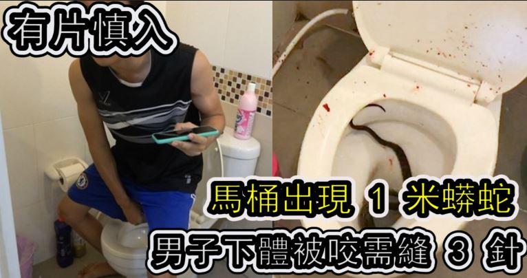 「有片慎入」馬桶出現 1 米蟒蛇 男子下體被咬需縫 3 針